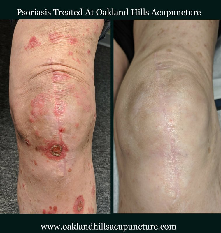 psoriasis-knee-before-and-after-2_orig