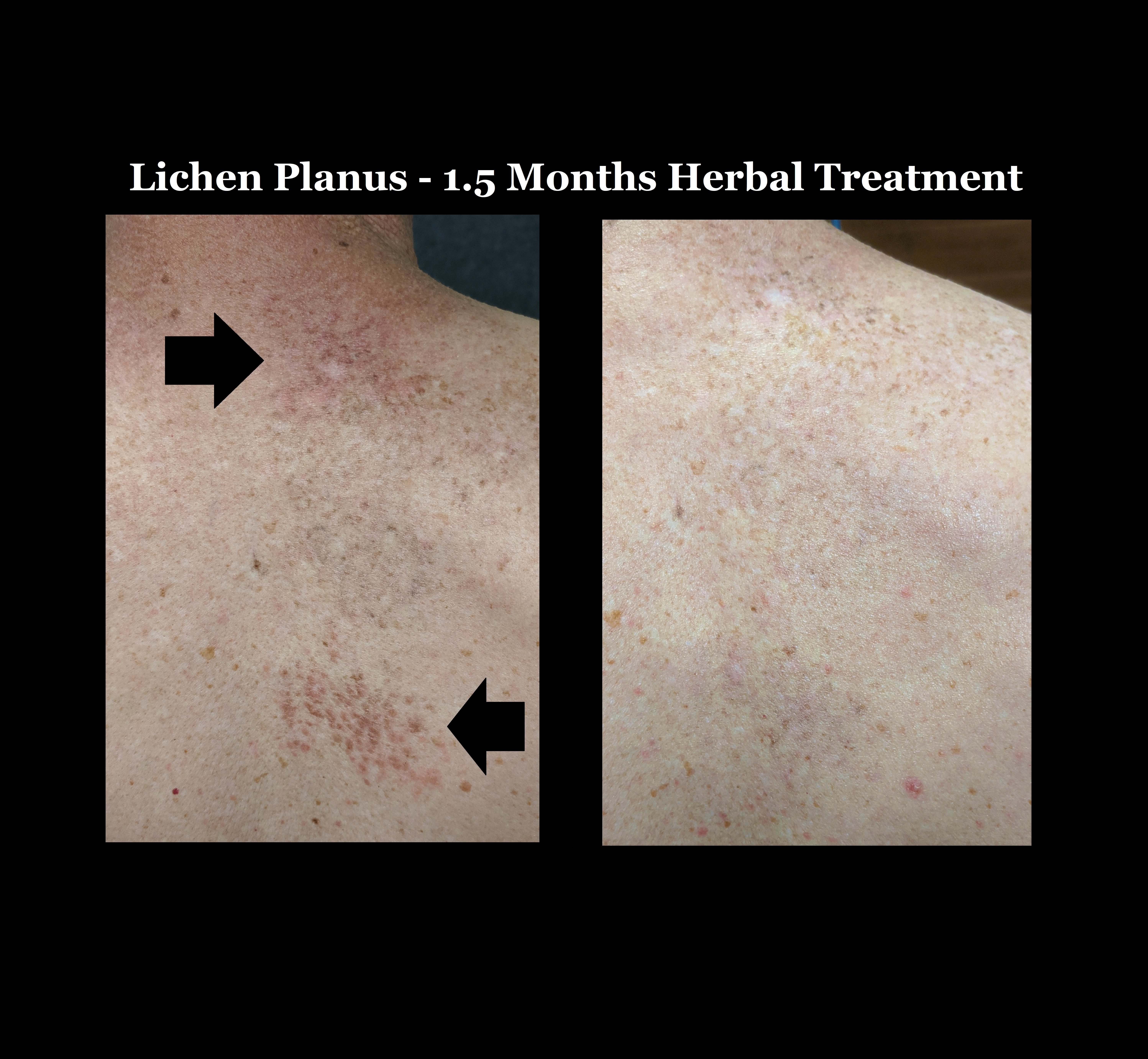 Before And After Picture Of Lichen Planus
